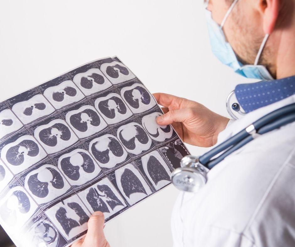Pulmologija